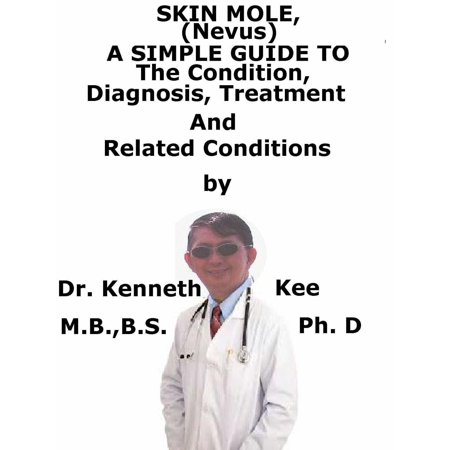 Skin Mole (Nevus), A Simple Guide To The Condition, Diagnosis, Treatment And Related Conditions - eBook