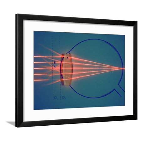 Parallel Rays of Light Enter a Nearsighted Eye with a Corrective Diverging Lens Framed Print Wall Art By (Ray Ban Wayfarer White Frame Black Lens)