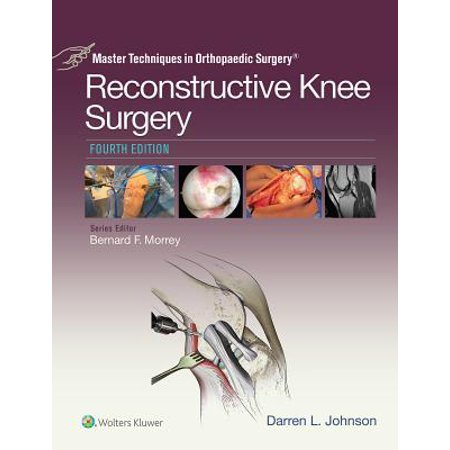 Master Techniques in Orthopaedic Surgery: Reconstructive Knee Surgery -
