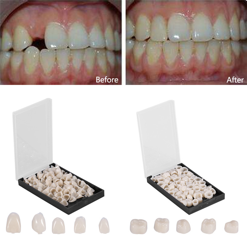 Temporary Dental Crown,50Pcs/Box Dental Front Teeth Temporary Realistic Oral Care Resin Crown Anterior Teeth