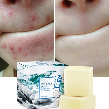 Sea Salt Soap Cleaner Removal Pimple Pores Acne Treatment Goat Milk Moisturizing Face Care Soap (Goat Milk Face Soap)