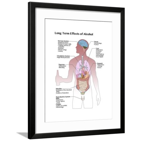 Long Term Effects of Alcohol Framed Print Wall Art By Spencer