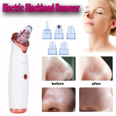 2019 New Electric Skin Care Facial Pore Cleanser Blackhead Acne Vacuum Cleaner (Best Skin Care In The World 2019)
