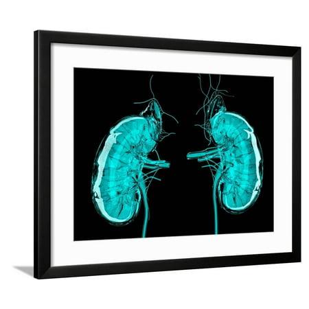 Artwork of the Kidneys Framed Print Wall Art By Laguna Design ()