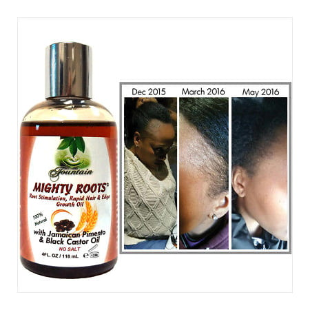 Receding hairline or thin hair growth oil /Jamaican pimento black castor oil