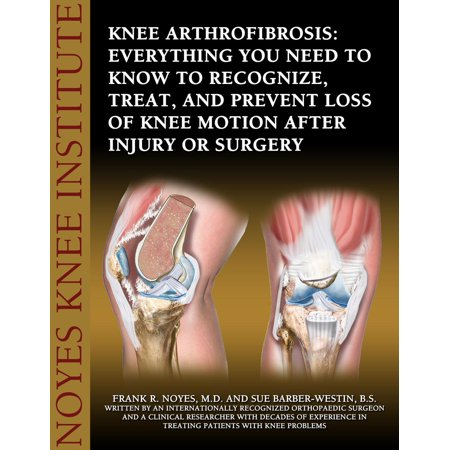 Knee Arthrofibrosis: Everything You Need to Know to Recognize, Treat, and Prevent Loss of Knee Motion After Injury or Surgery -