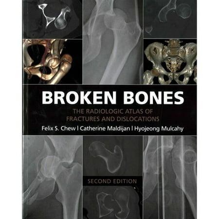 Broken Bones  The Radiologic Atlas Of Fractures And Dislocations