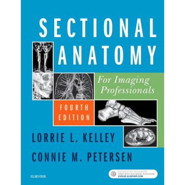 Sectional Anatomy for Imaging Professionals - E-Book ...