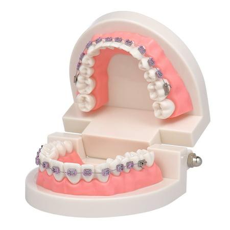 Modèle dentaire de mallocclusion orthodontique avec des supports Modèle de dents de tube buccal Archwire pour la communication patiente Enseignement des adultes - image 1 of 6