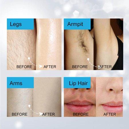 HURRISE 4 EN 1 Portable Lady Grooming Kit Femmes Mini rasage électrique Cutter Remover Hair Set Remover, rasoir électrique, rasoir à sourcils - image 9 de 10