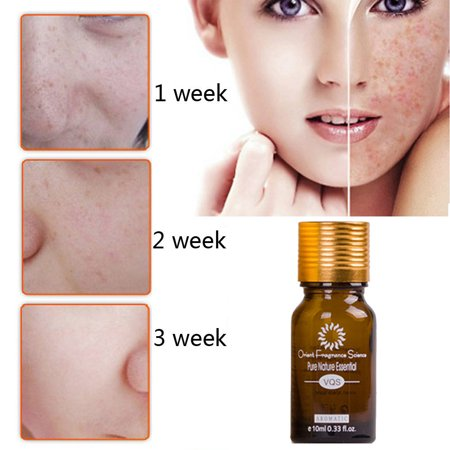 Blemish Essential Oil Decomposition Pigment Whiten Moisturizing Anti (Anti Aging Essential Oils)