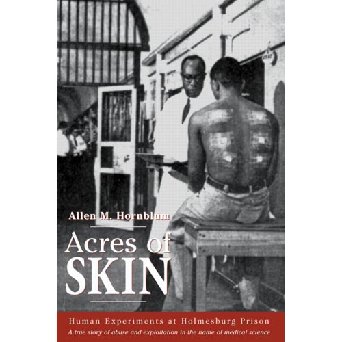Acres of skin human experiments at holmesburg prison a true story