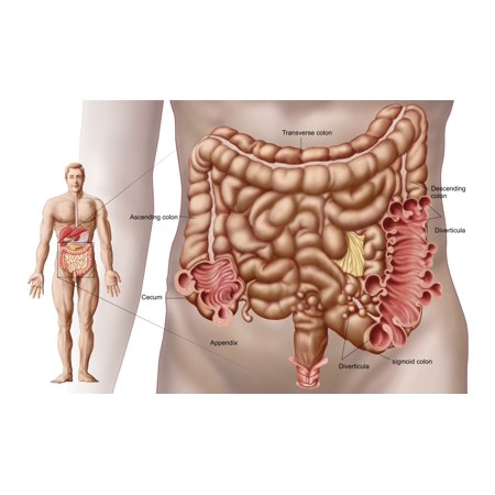 Diverticulitis In The Descending Colon Region Of The Human Intestine Canvas Art   Stocktrek Images  37 X 22