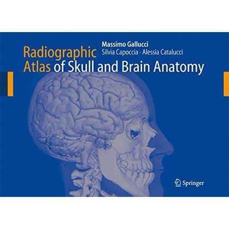 Radiographic Atlas Of Skull And Brain Anatomy Walmart