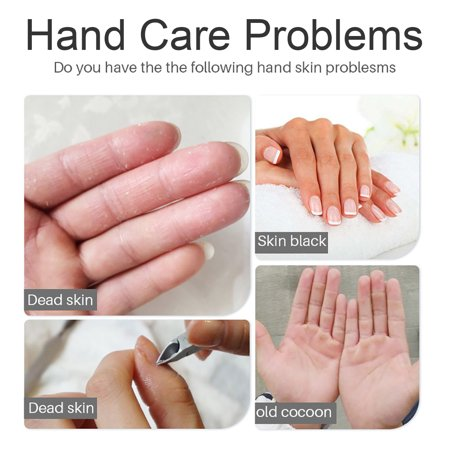 dead skin on hands