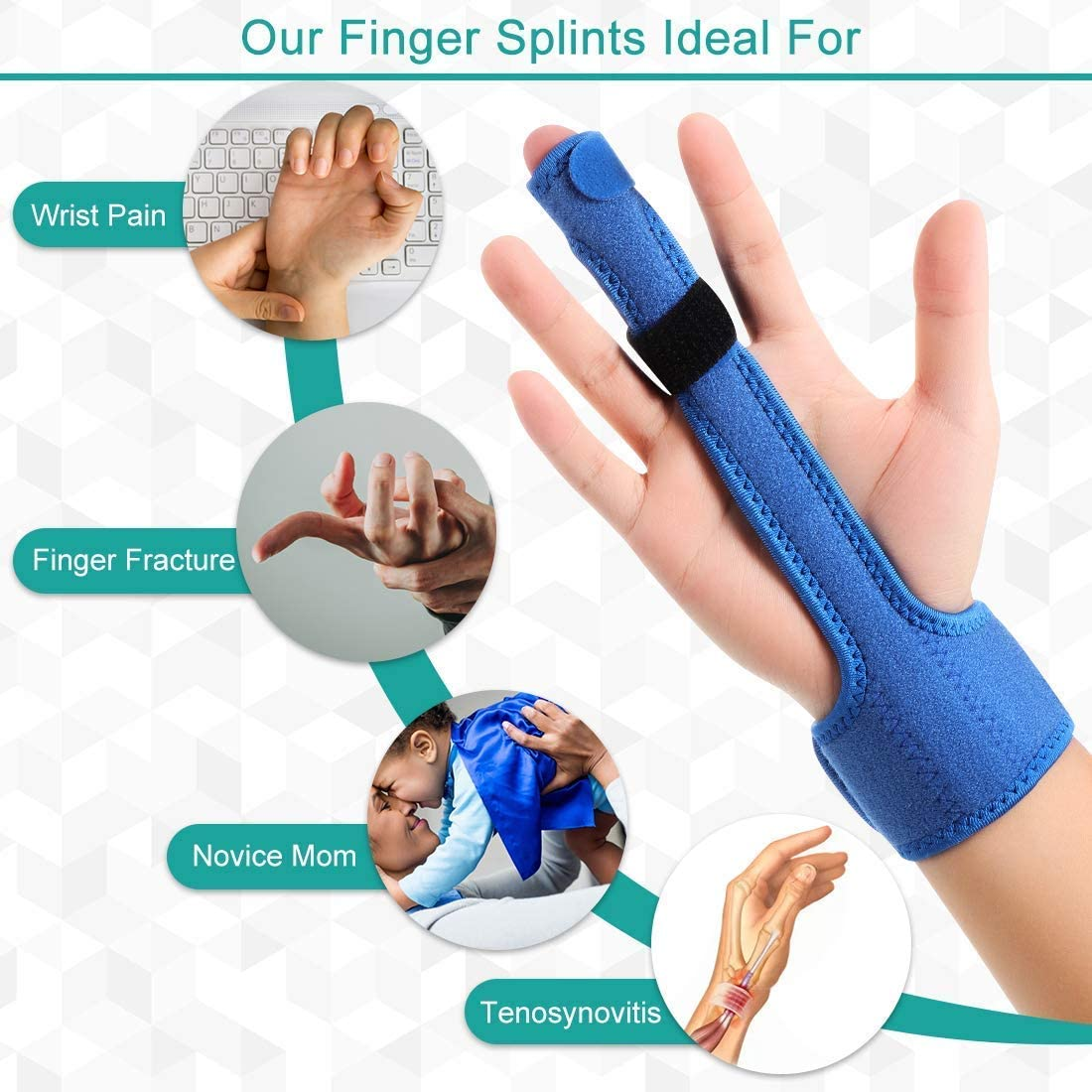 Finger kapselriss