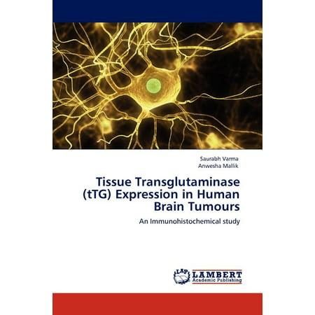 Tissue Transglutaminase (Ttg) Expression in Human Brain Tumours