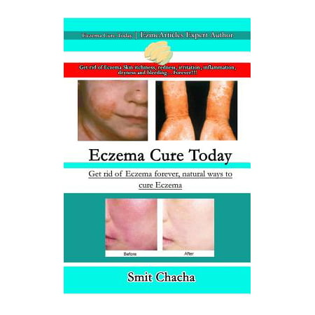 Eczema Cure Today - Get Rid of Eczema Forever Natural Ways to Cure (Best Way To Get Rid Of Pee Smell)