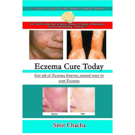 Eczema Cure Today - Get rid of Eczema forever natural ways to cure