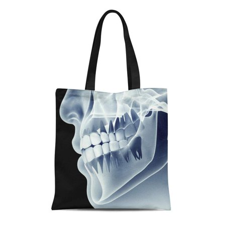 ASHLEIGH Canvas Tote Bag Xray X Ray of Jaw Teeth Human Mouth Radiography Durable Reusable Shopping Shoulder Grocery Bag