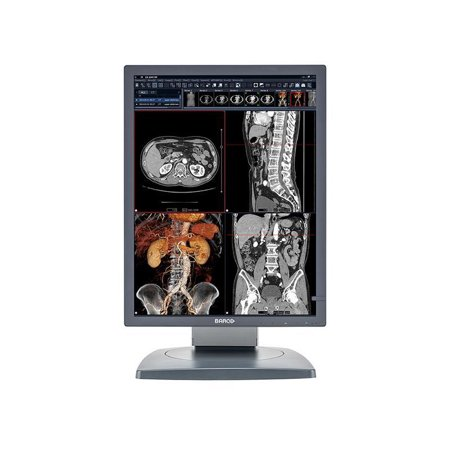 Barco® Coronis MDCC-3120 3MP Color Medical Diagnostic Radiology Monitor (K9601108)