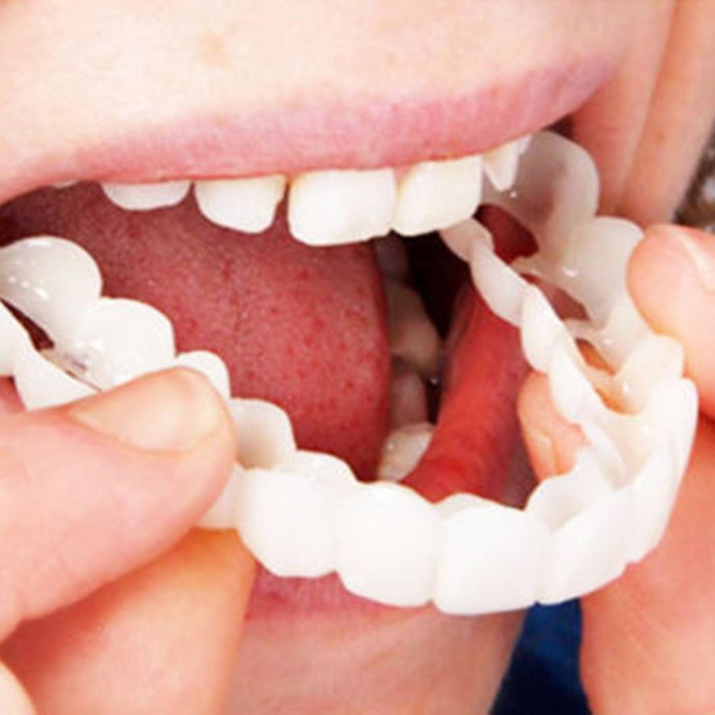 2Pcs/Set Comfort Fit Flex White Fake Teeth Cover Top Veneer Denture Dental  Kit