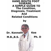 Hand Mouth and Foot Disease, A Simple Guide To The Condition, Diagnosis, Treatment And Related Conditions - eBook
