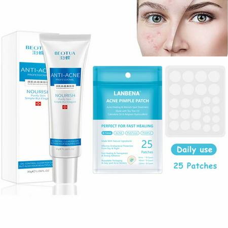 Anti-acne Purify Skin Acne Remover Cream Acne Pimple Patch Set