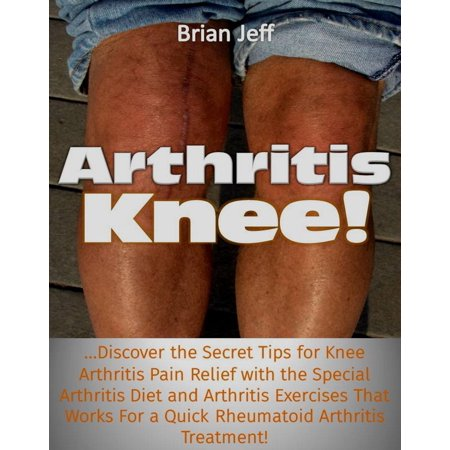Arthritis Knee! …Discover the Secret Tips for Knee Arthritis Pain Relief with the Special Arthritis Diet and Arthritis Exercises That Works For a Quick Rheumatoid Arthritis Treatment! -