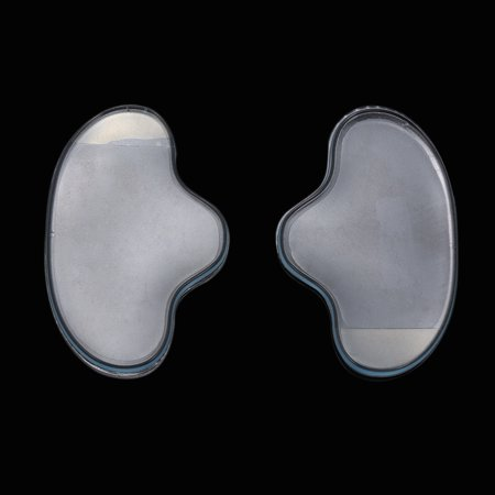 Anti Wrinkle Eye Face Pad Reusable Grade Silicone Invisible Nasolabial Folds Anti-aging Mask Face Wrinkle - image 2 of 7