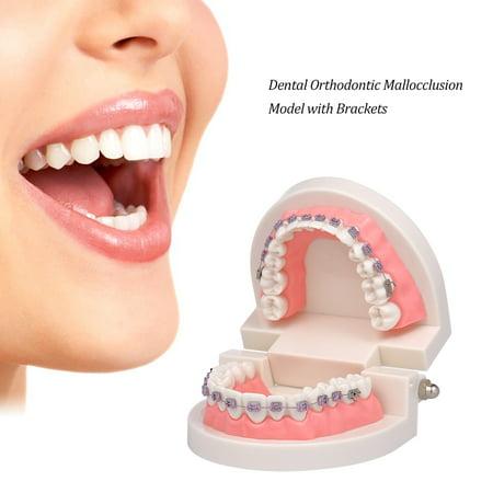 Modèle dentaire de mallocclusion orthodontique avec des supports Modèle de dents de tube buccal Archwire pour la communication patiente Enseignement des adultes - image 5 of 6