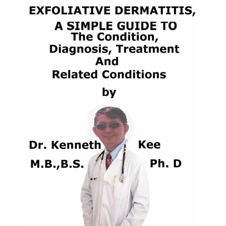 Exfoliative Dermatitis, (Erythroderma) A Simple Guide To The Condition, Diagnosis, Treatment And Related Conditions - (Best Otc Treatment For Contact Dermatitis)