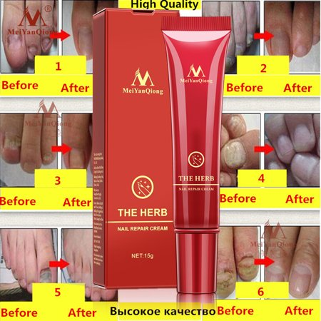 BEAD BEE Fungal Nail Treatment Essence Nail And Foot Fungus Removal Feet Care