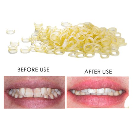 100 pcs Dental Rubber Bands Orthodontic Elastics Braces Teeth (Close Gap In Front Teeth Without Braces)
