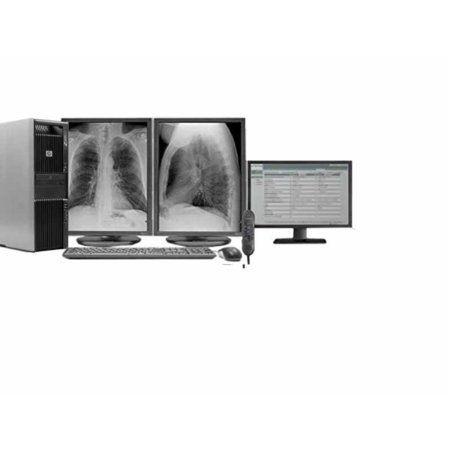 Complete General Radiology Reading Station - 2 x NDS Dome S3 3MP, HP Z600,  Dictation Mic, Worklist Monitor (S3Z600)