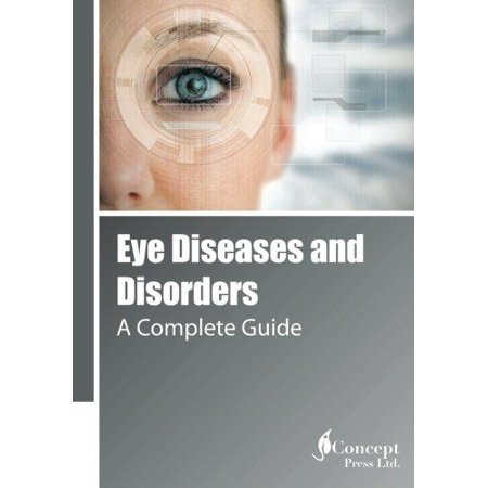 Eye Diseases And Disorders  A Complete Guide