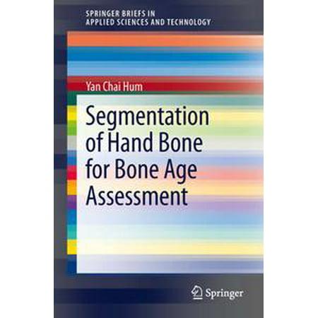Segmentation of Hand Bone for Bone Age Assessment - - Hand Bone