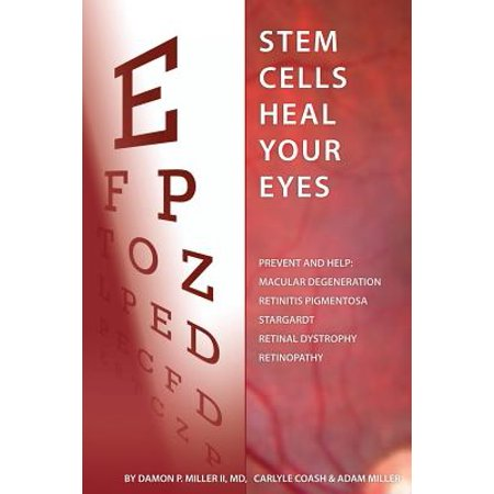 Stem Cells Heal Your Eyes : Prevent and Help: Macular Degeneration, Retinitis Pigmentosa, Stargardt, Retinal Distrophy, and