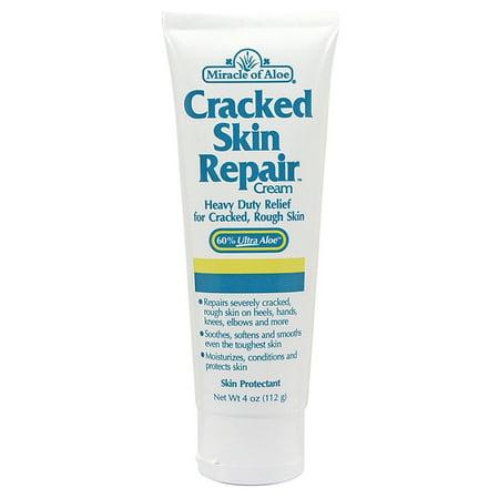 Cracked Skin Repair Cream 4 ounce tube with   42% Ultra Aloe