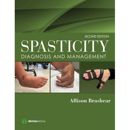 Spasticity   Diagnosis And Management