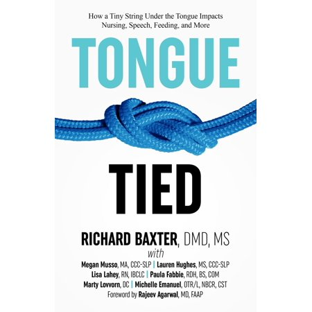 Tongue-Tied : How a Tiny String Under the Tongue Impacts Nursing, Speech, Feeding, and More (How Much Is Silly String)