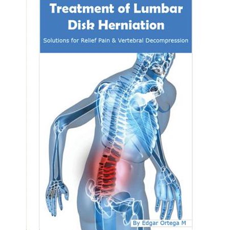 Treatment of Lumbar Disk Herniation : Back Pain Relief and Herniated Discs