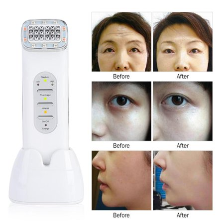 Yosoo RF Radio Frequency Dot Matrix Face Tightening Rejuvenation Skin Beauty Machine US,RF Facial Machine, Radio Frequency Facial