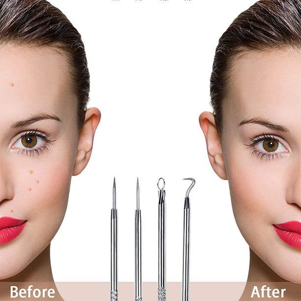 Blackhead Remover Tool Kit,4 Pcs Pimple Comedone Extractor Tool Blemishes Blackhead Whitehead Removal Kit Acne Scar Treatments for Facial Skincare Stainless Steel
