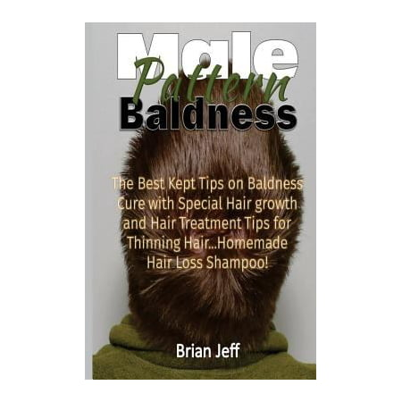 Male Pattern Baldness: The Best Kept Tips on Baldness Cure With Special Hair Growth and Hair Treatment Tips for Thinning Hair. homemade Hair Loss Shampoo!