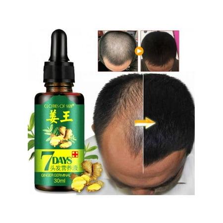 VICOODA Hair Loss Treatment Ginger Hair Growth Serum For Thicker Healthier Hair Hair Care For Men And