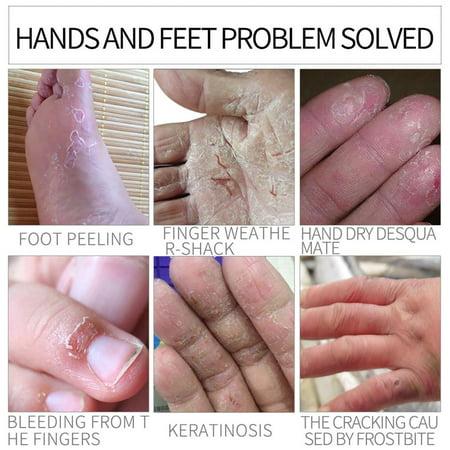 Chapped Hands Remedy (30G Natural Formula Hand Foot Crack Cream Heel Chapped Peeling Foot Hand Repair Anti Dry Crack Skin Care Repair)