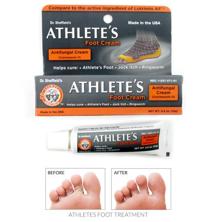 Athlete's Foot Antifungal Cream Treatment Jock Itch Ringworm Itching Anti