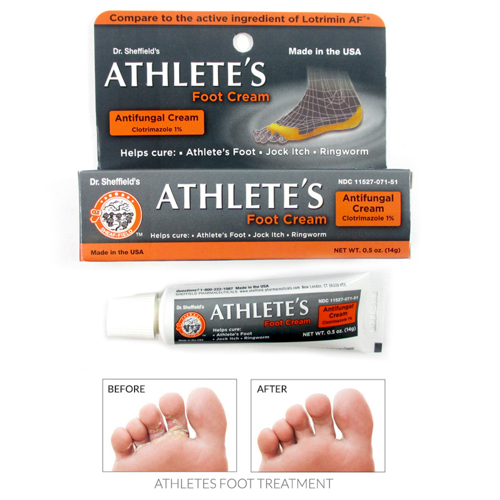 Athlete's Foot Antifungal Cream Treatment Jock Itch Ringworm Itching Anti Fungus