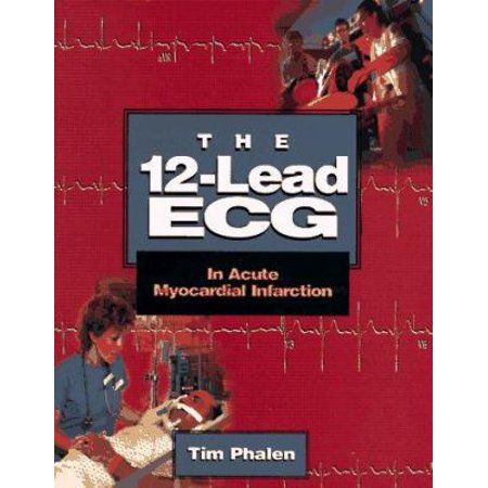 The 12 Lead Ecg In Acute Myocardial Infarction By Tim Phalen